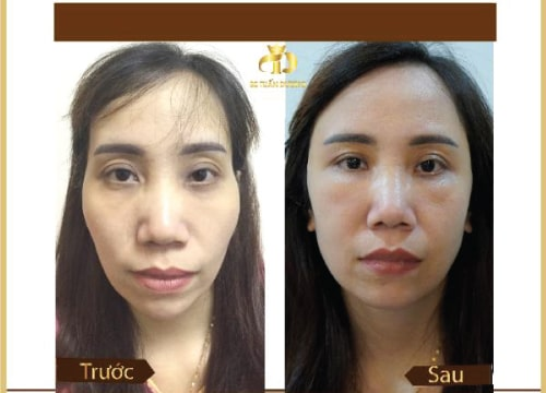 Hình ảnh khách hàng trước và sau khi độn gò má, thái dương