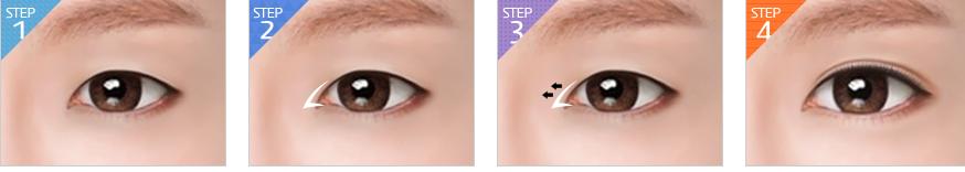 Quy trình mở góc mắt tại thẩm mỹ bác sỹ Tuấn Dương