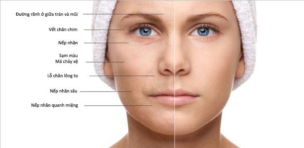 Tinh chất Meso giúp cải thiện các vấn đề về da