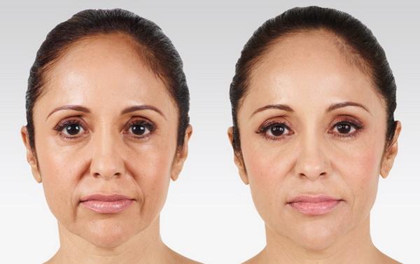 Trẻ hóa da nhờ cấy tinh chất Meso