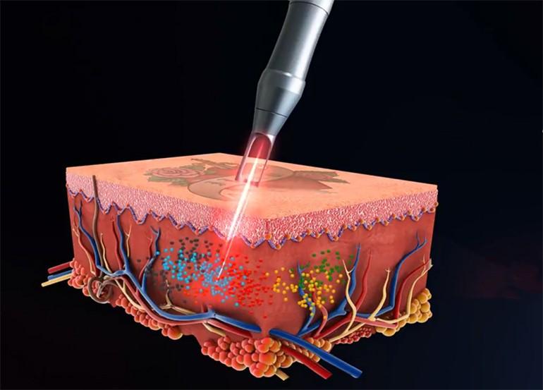 Tác dụng của laser Picocare trong việc điều trị nám, tàn ngang